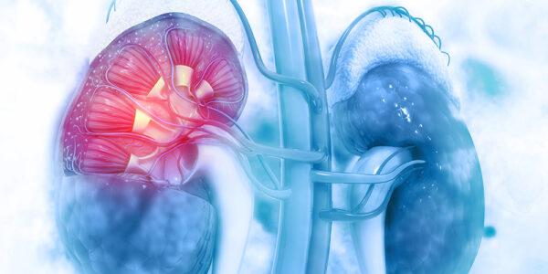 Nierenzellkarzinom: Was kommt nach einer immunonkologischen Kombinationstherapie?