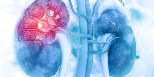 Fortgeschrittenes Nierenzellkarzinom: Cabozantinib + Nivolumab für die Erstlinientherapie zugelassen